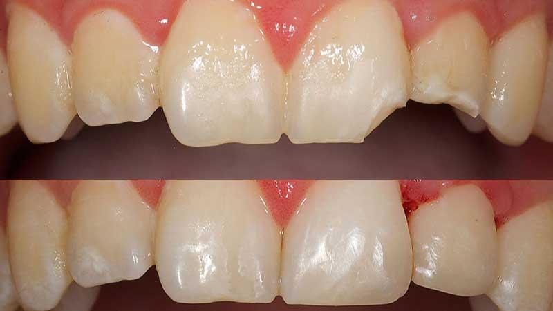 Zahnfarbene Füllungen mit modernsten Kompositmaterialien